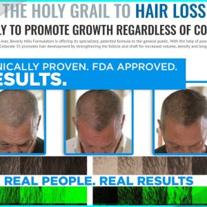 Xcellerate 35 | Xcellerate 35 Hair Growth | The XC35 Anti-Hair Loss Regrowth Spray (Update 2021)